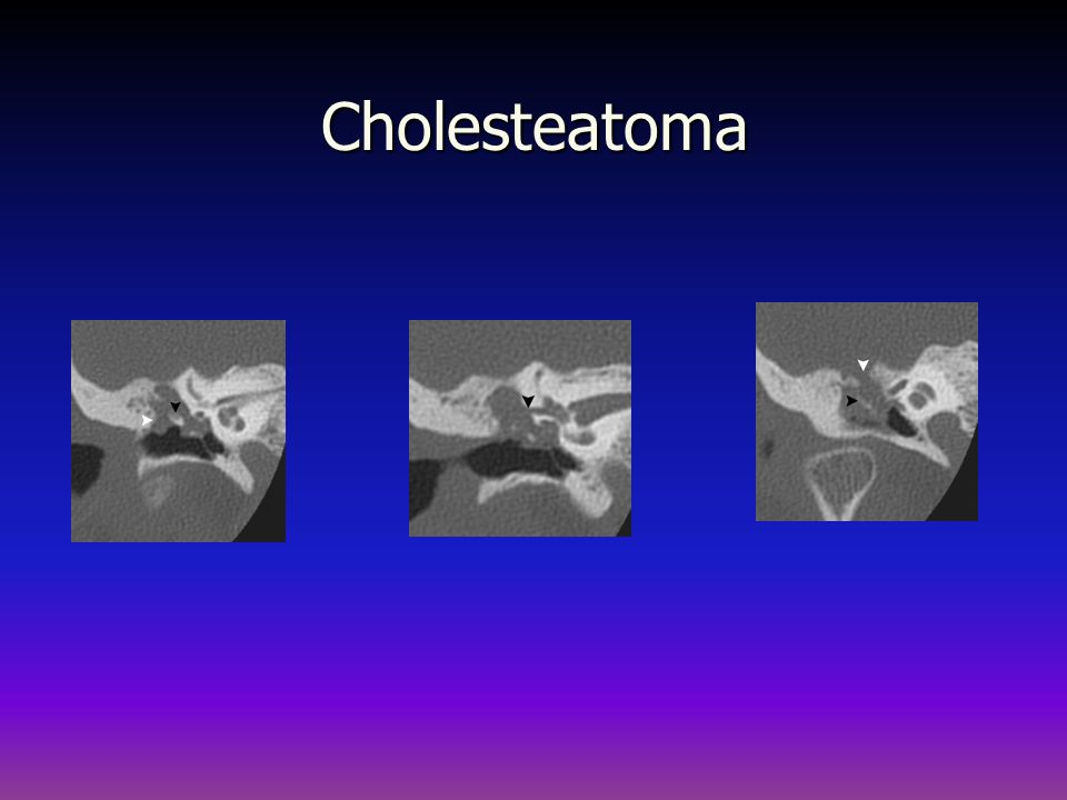 Cholesteatoma