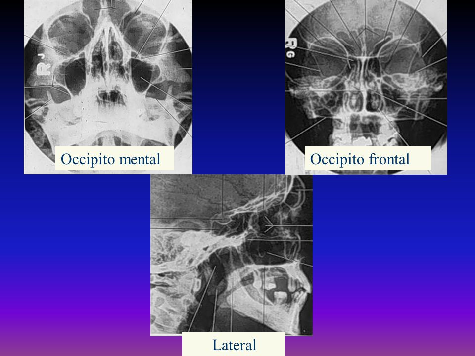 Occipito mental Occipito frontal Lateral