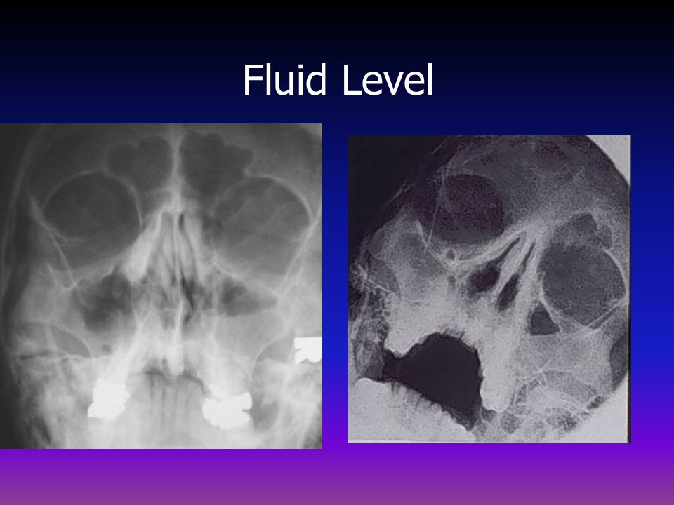 Fluid Level