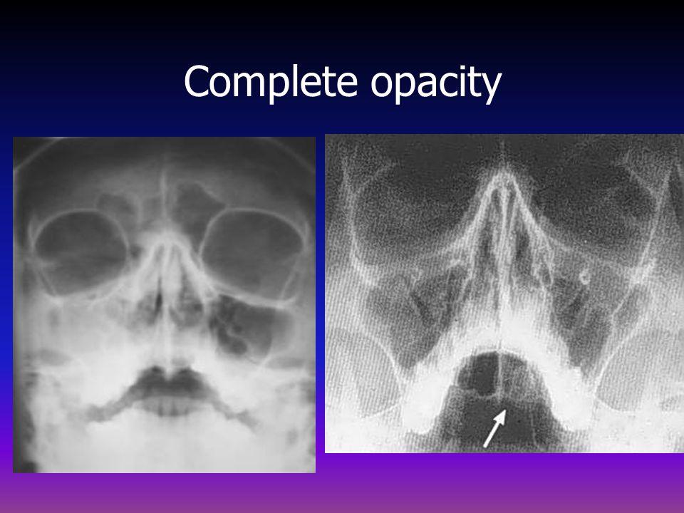 Complete opacity