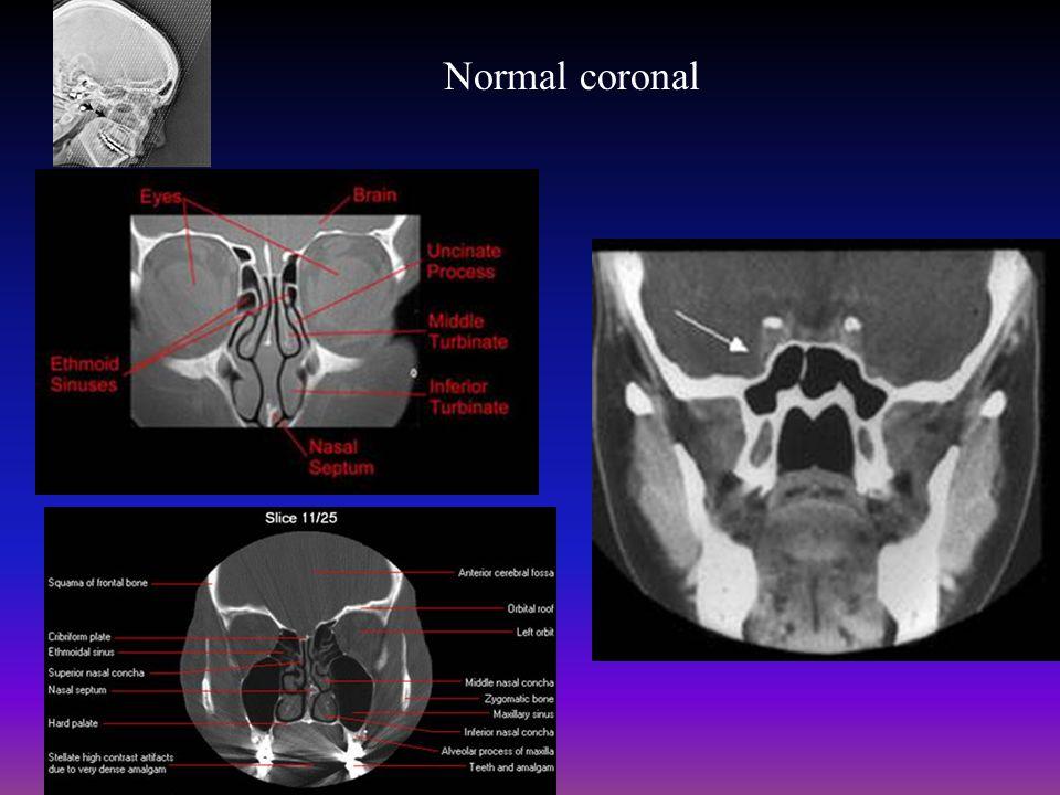 Normal coronal