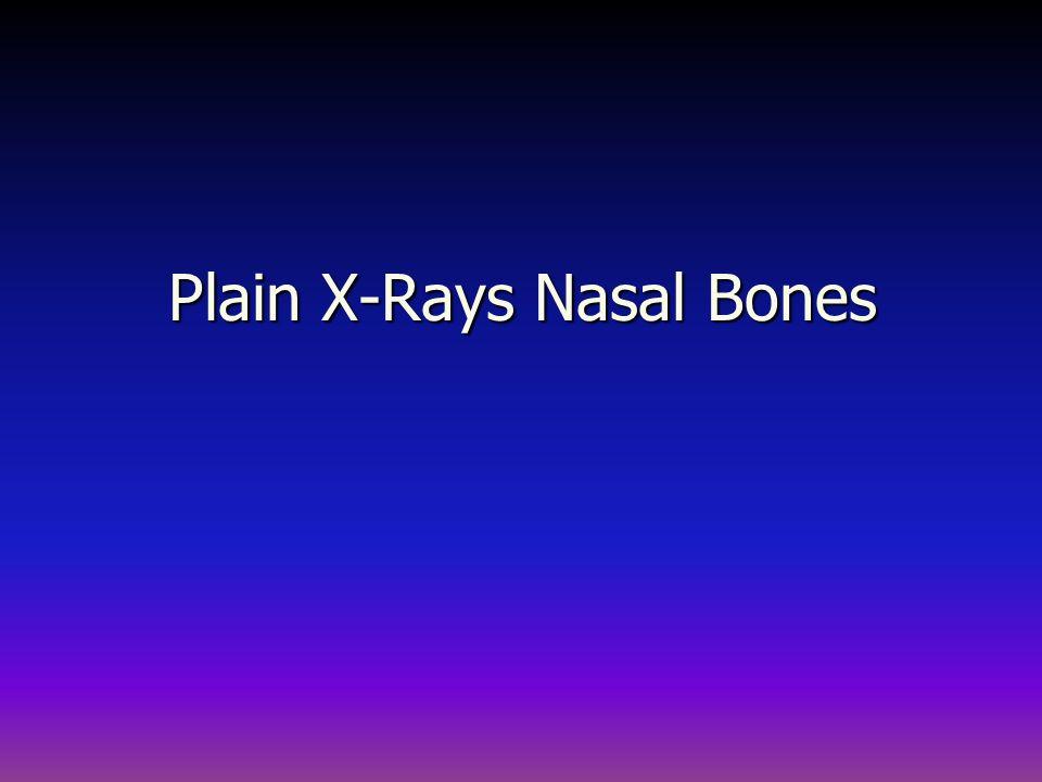 Plain X-Rays Nasal Bones