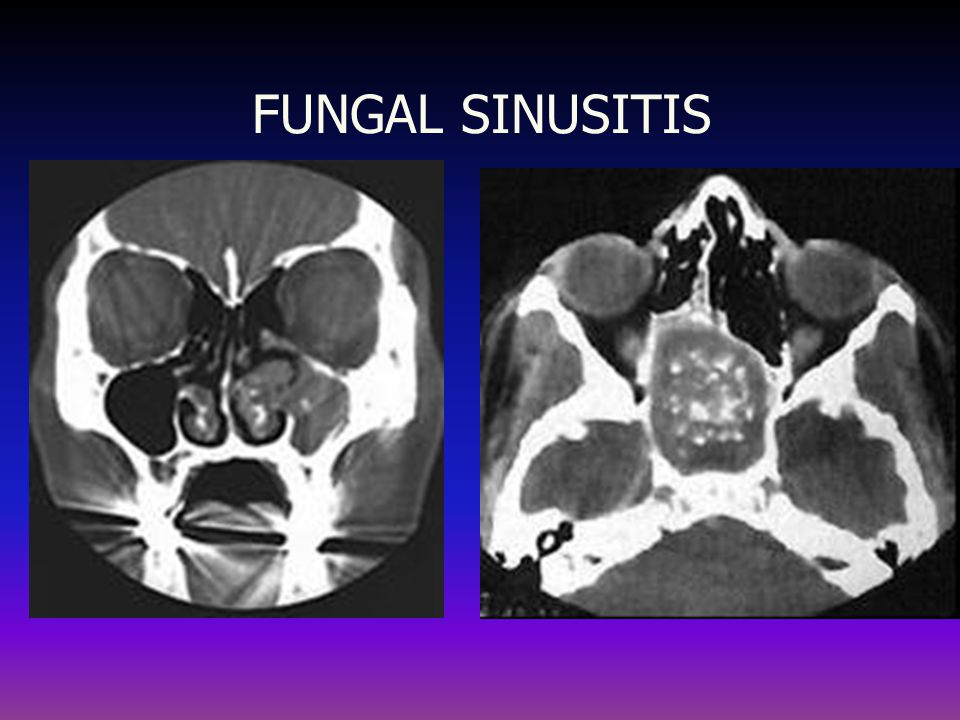 FUNGAL SINUSITIS