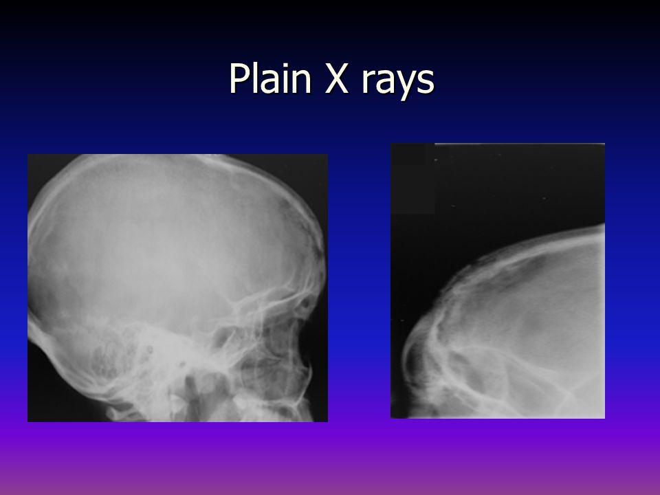Plain X rays