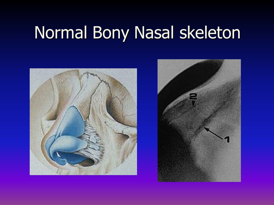 Normal Bony Nasal skeleton