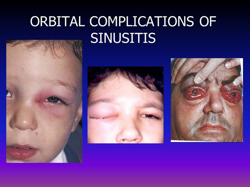 ORBITAL COMPLICATIONS OF SINUSITIS