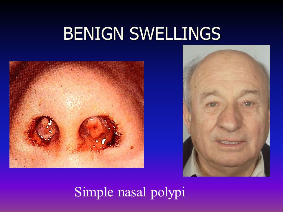 BENIGN SWELLINGS Simple nasal polypi