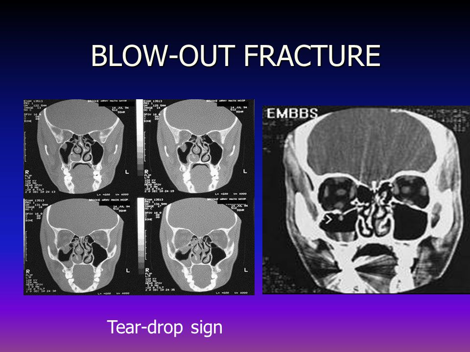 BLOW-OUT FRACTURE Tear-drop sign