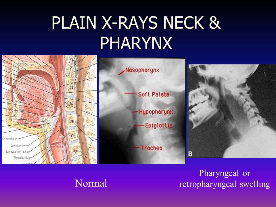 PLAIN X-RAYS NECK & PHARYNX