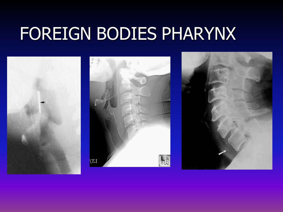 FOREIGN BODIES PHARYNX
