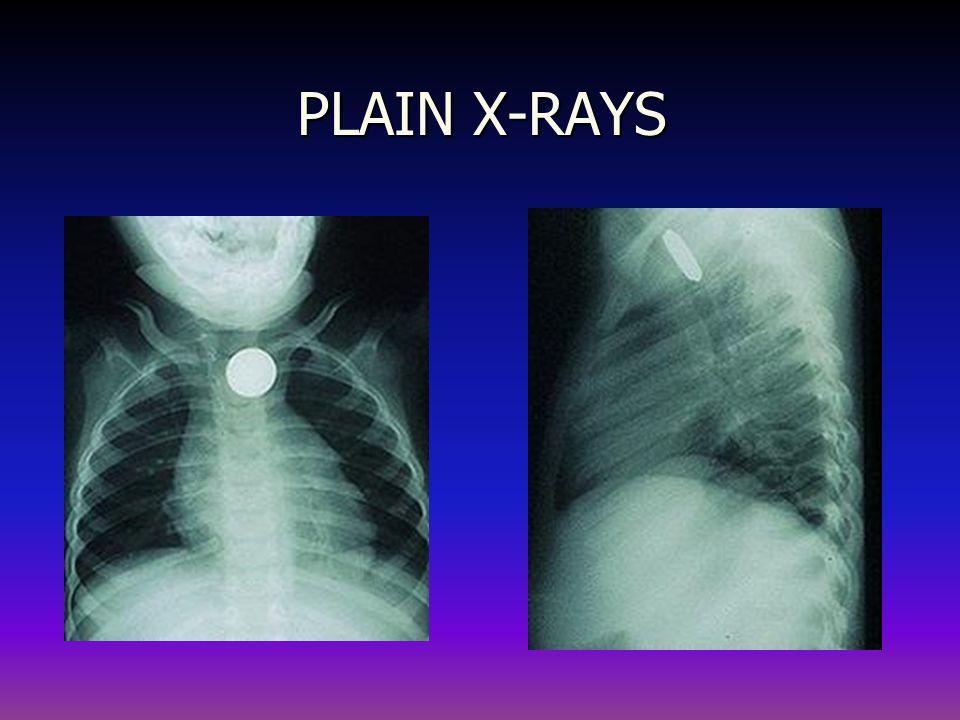 PLAIN X-RAYS