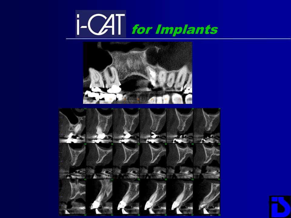 for Implants