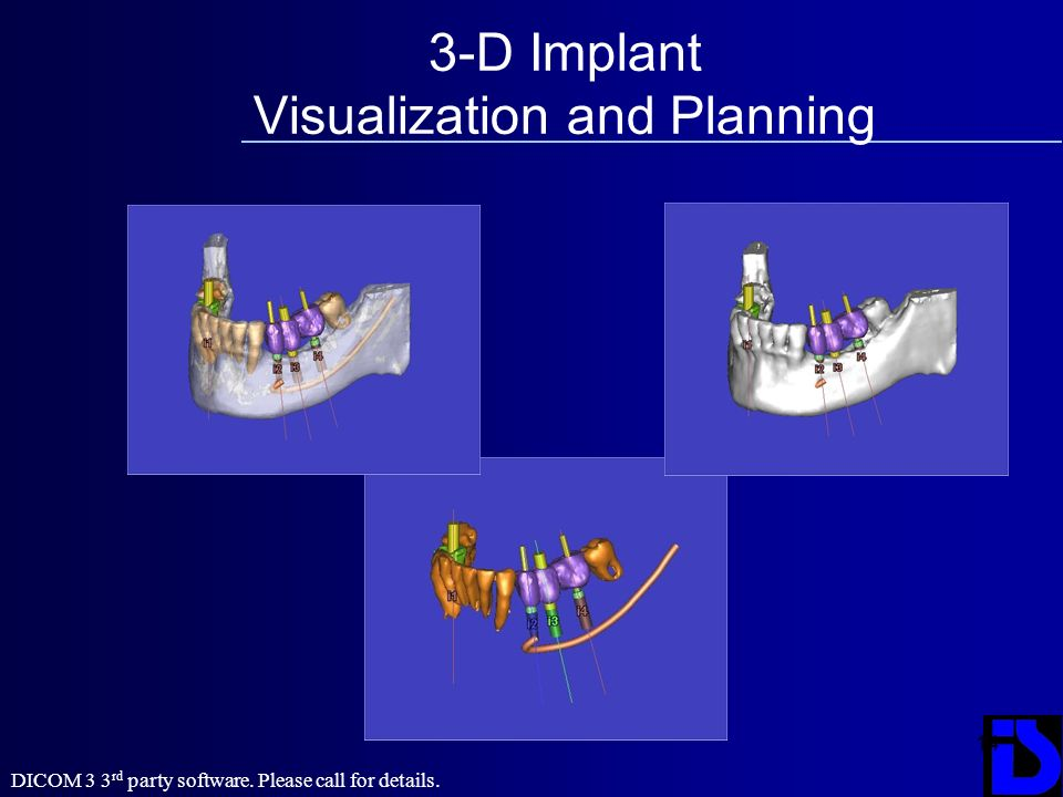 3-D Implant Visualization and Planning