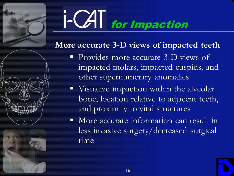 for Impaction More accurate 3-D views of impacted teeth