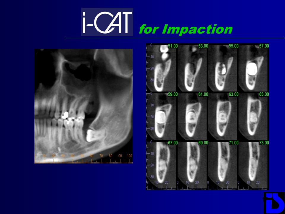 for Impaction