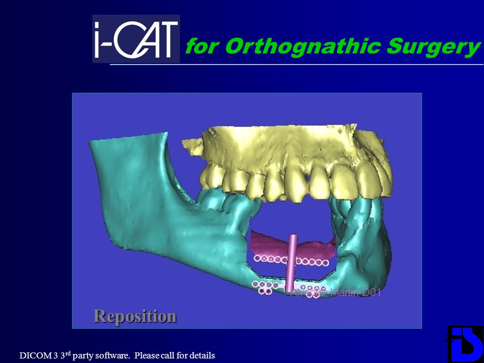 for Orthognathic Surgery