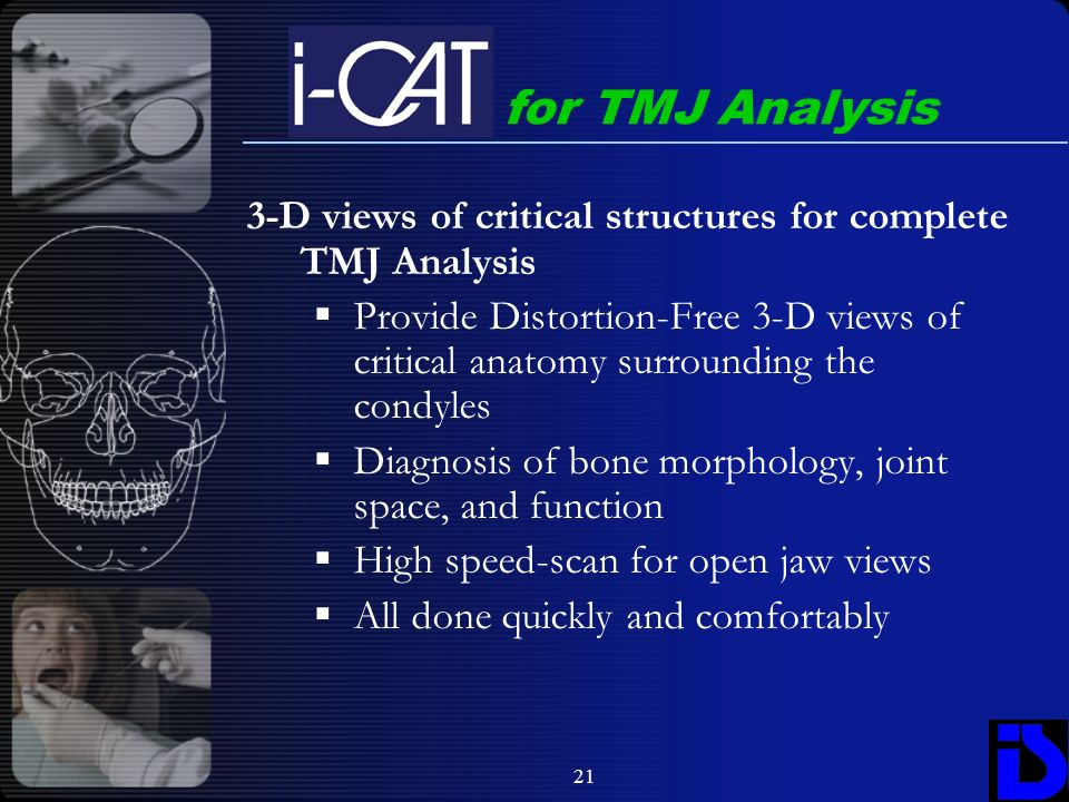 for TMJ Analysis 3-D views of critical structures for complete TMJ Analysis.