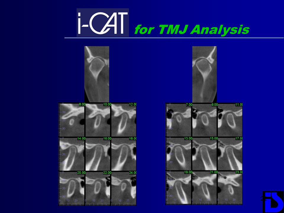 for TMJ Analysis
