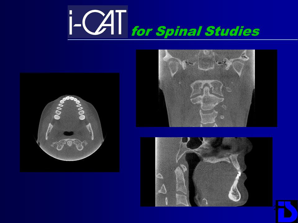for Spinal Studies
