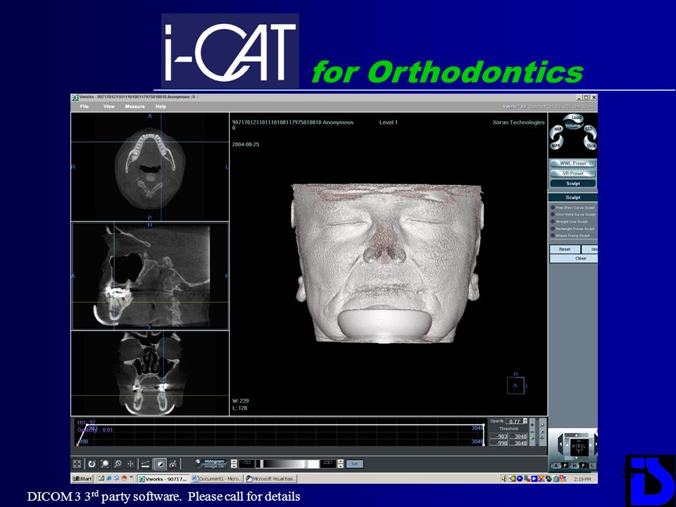 for Orthodontics DICOM 3 3rd party software. Please call for details