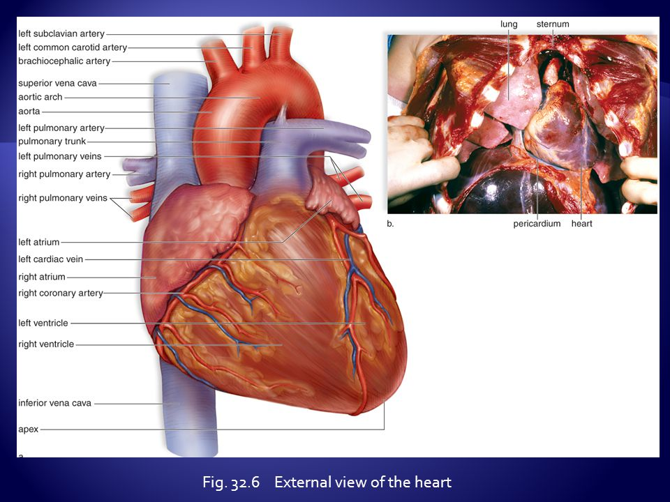 Fig. 32.6 External view of the heart