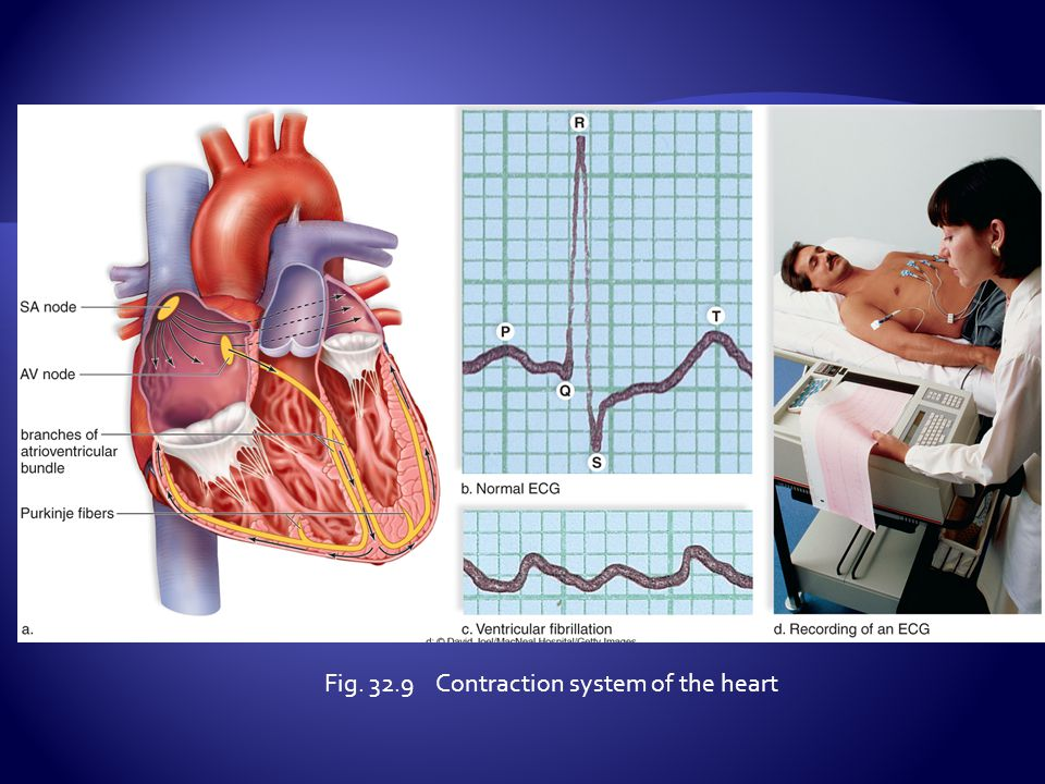 Fig. 32.9 Contraction system of the heart