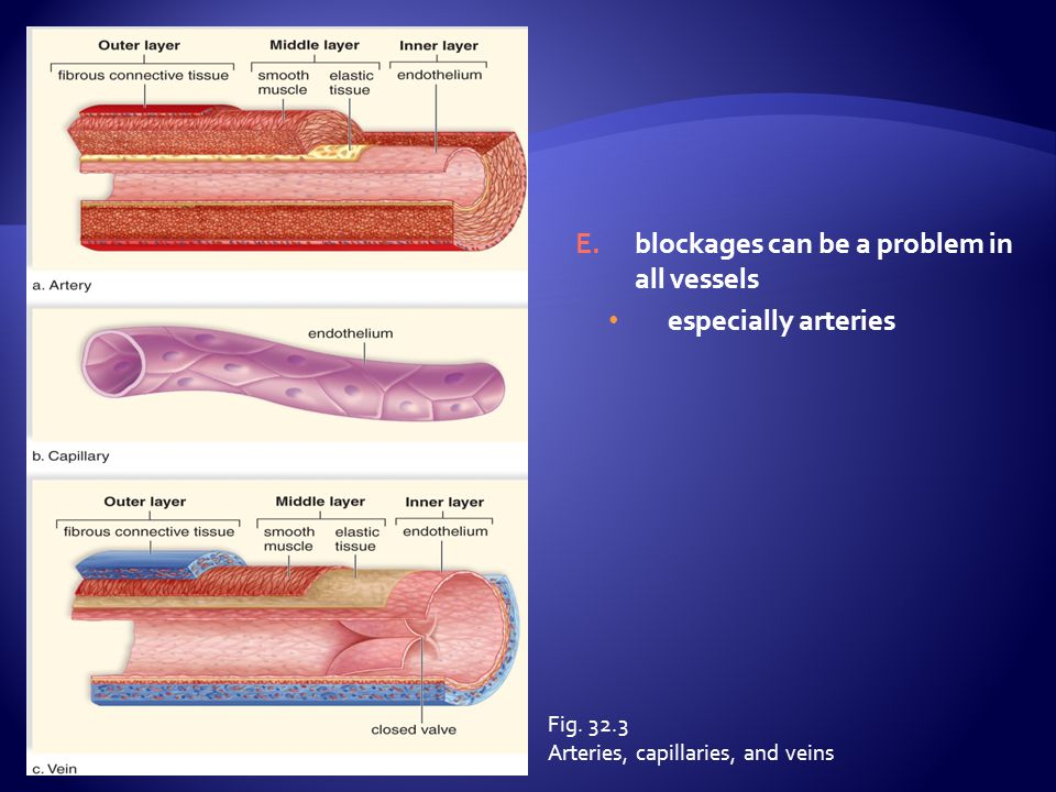 blockages can be a problem in all vessels especially arteries