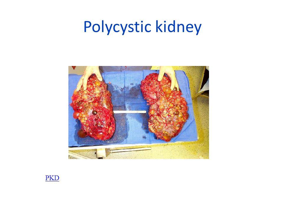Polycystic kidney PKD