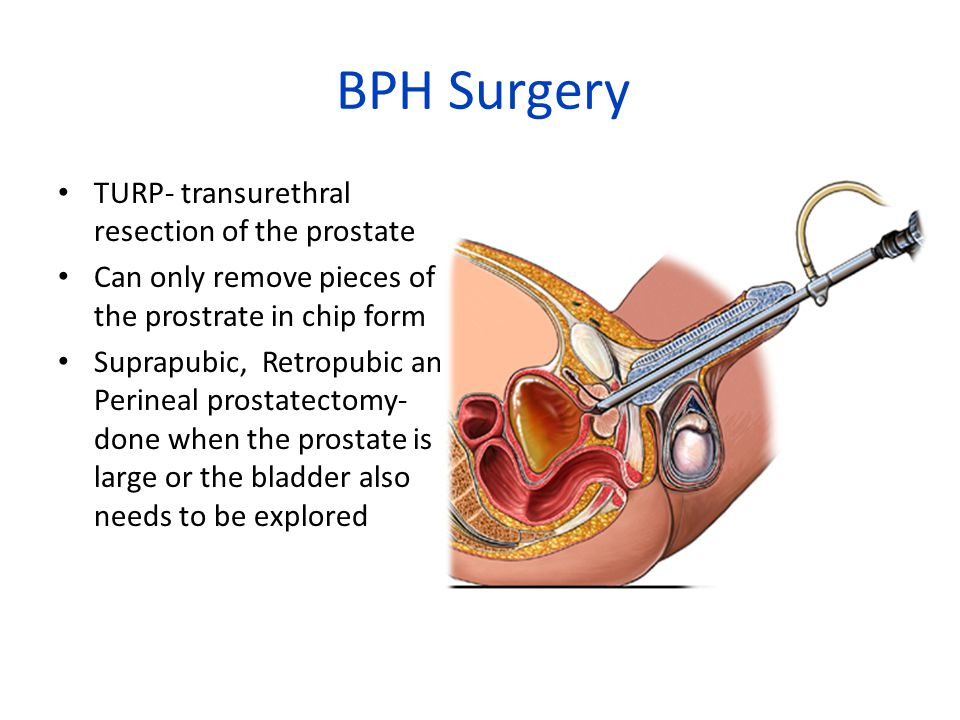 BPH Surgery TURP- transurethral resection of the prostate