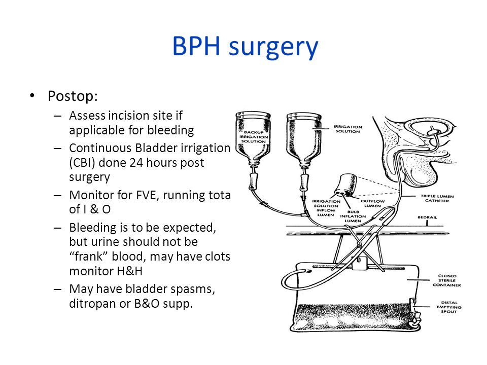 BPH surgery Postop: Assess incision site if applicable for bleeding