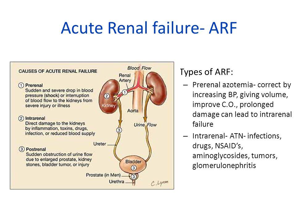 Acute Renal failure- ARF