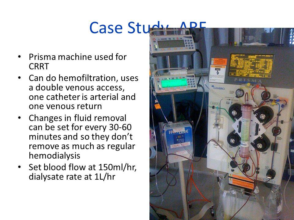 Case Study- ARF Prisma machine used for CRRT