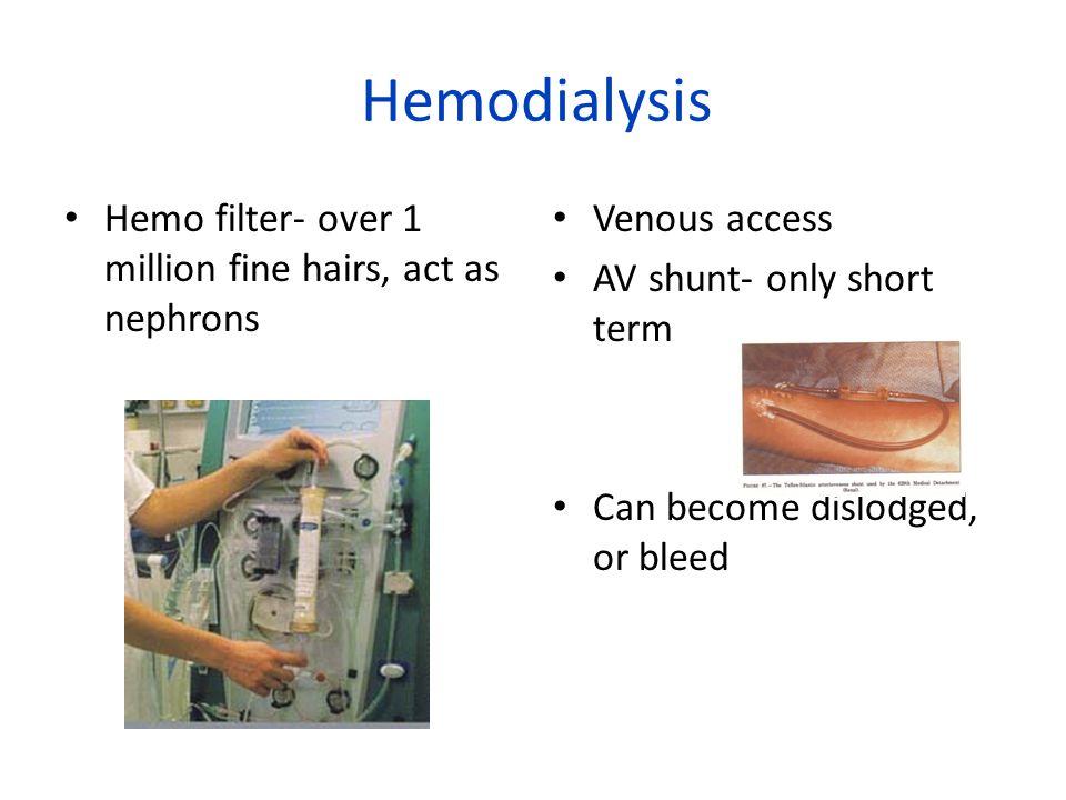Hemodialysis Hemo filter- over 1 million fine hairs, act as nephrons