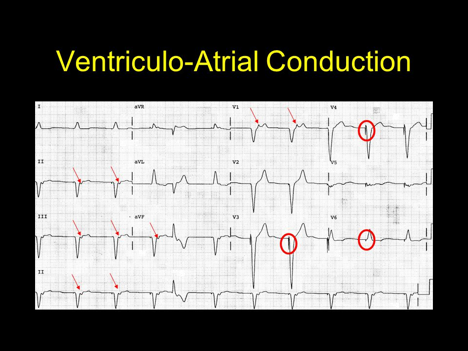 Ventriculo-Atrial Conduction