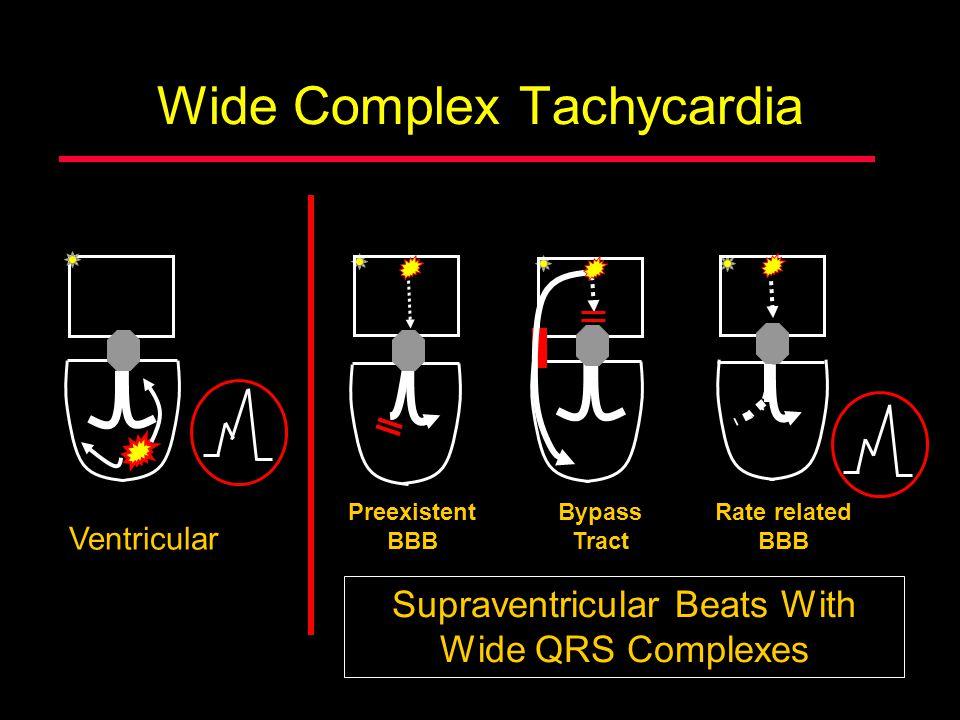 Wide Complex Tachycardia