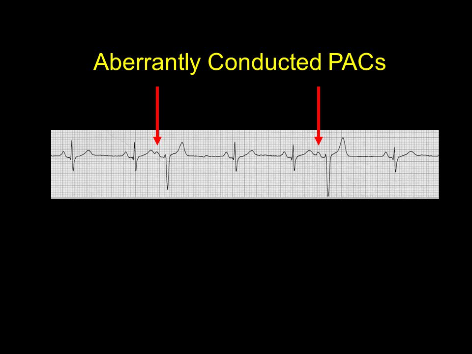 Aberrantly Conducted PACs