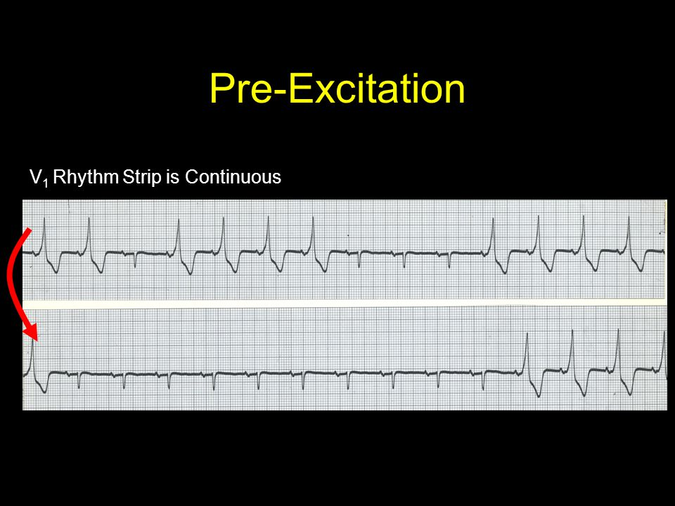 Pre-Excitation V1 Rhythm Strip is Continuous