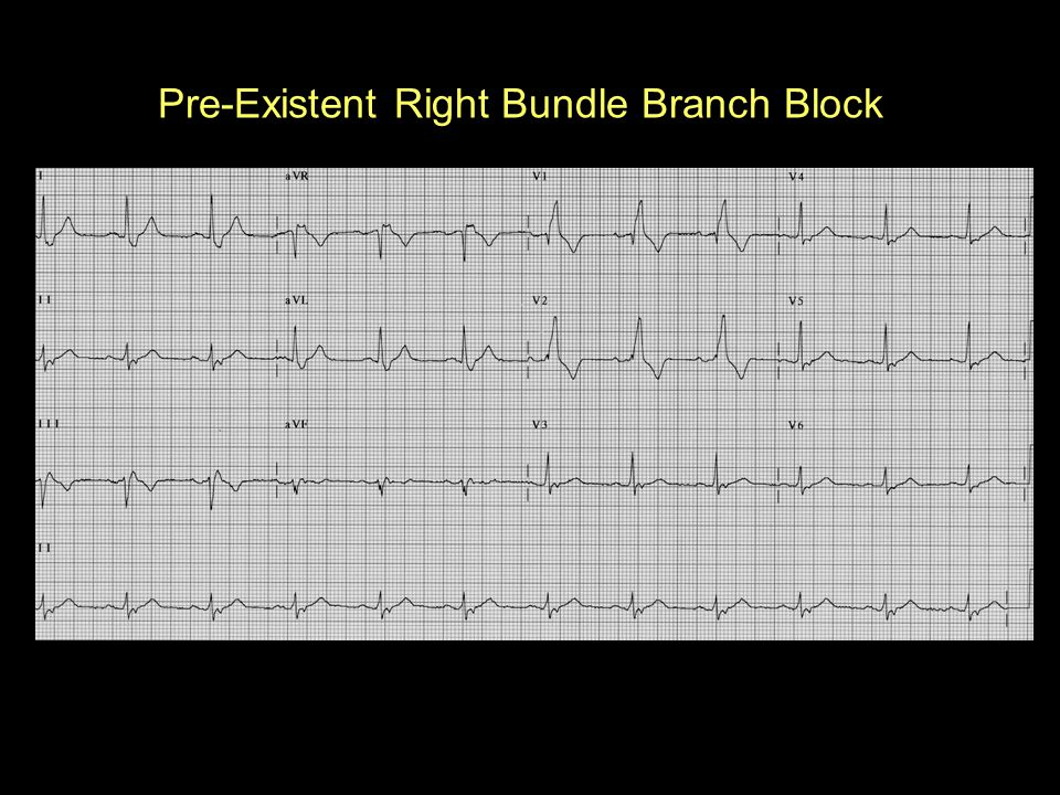 Pre-Existent Right Bundle Branch Block