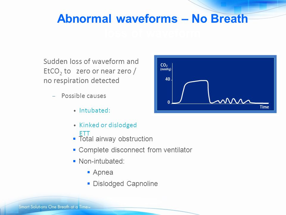Abnormal waveforms – No Breath loss of waveform