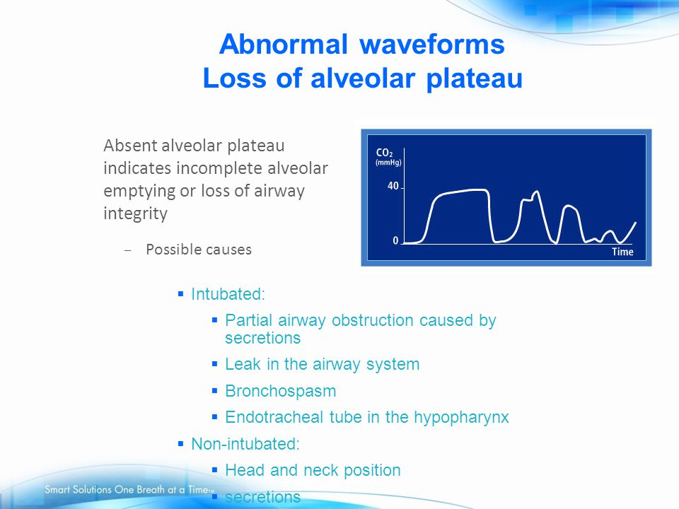 Abnormal waveforms Loss of alveolar plateau