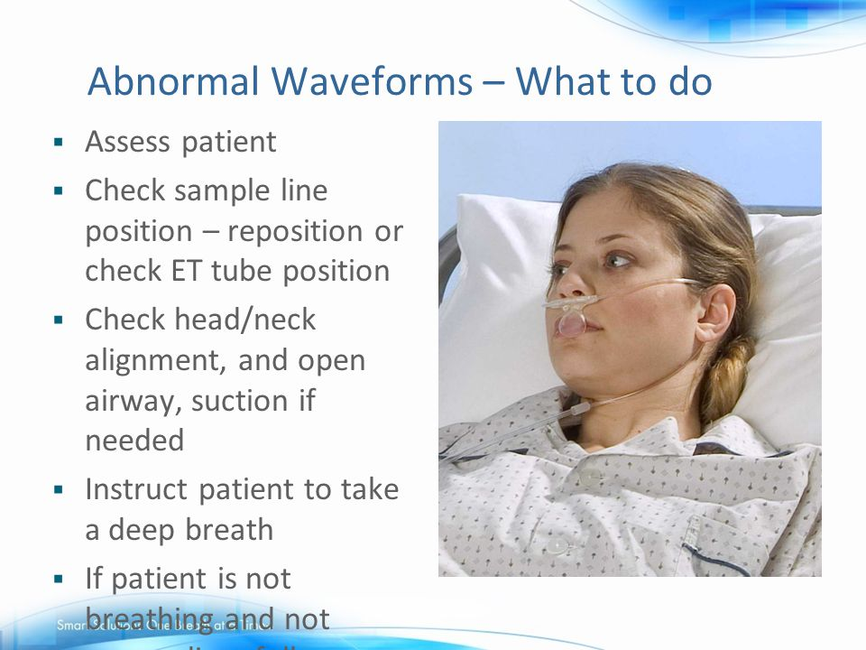 Abnormal Waveforms – What to do
