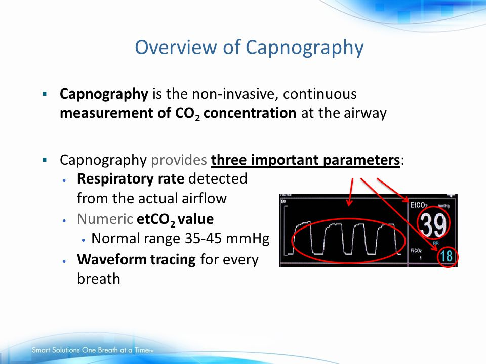 Overview of Capnography