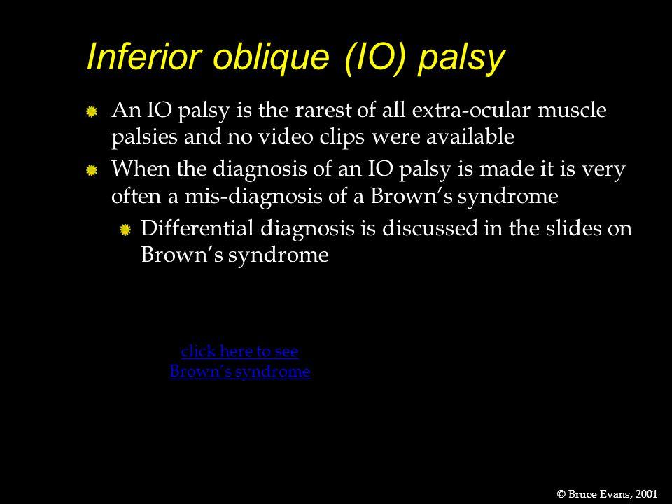 Inferior oblique (IO) palsy