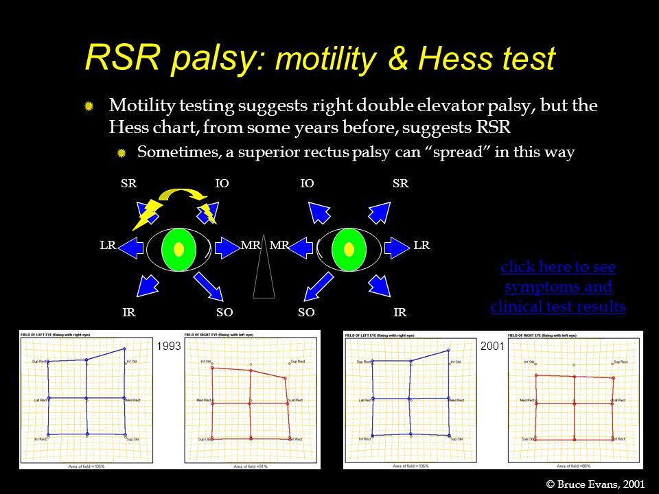 RSR palsy: motility & Hess test