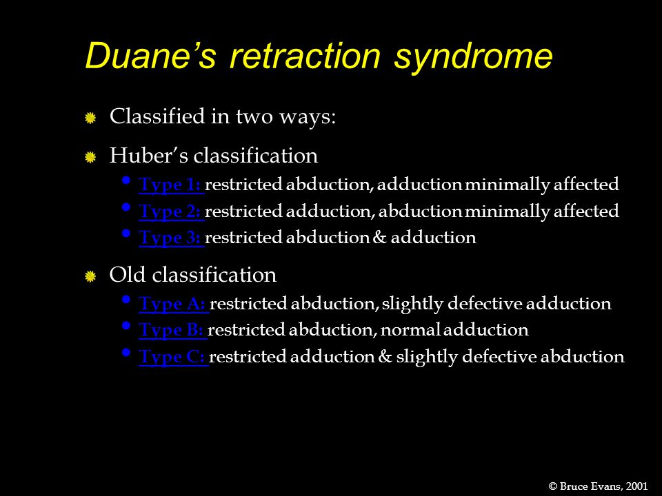 Duane's retraction syndrome