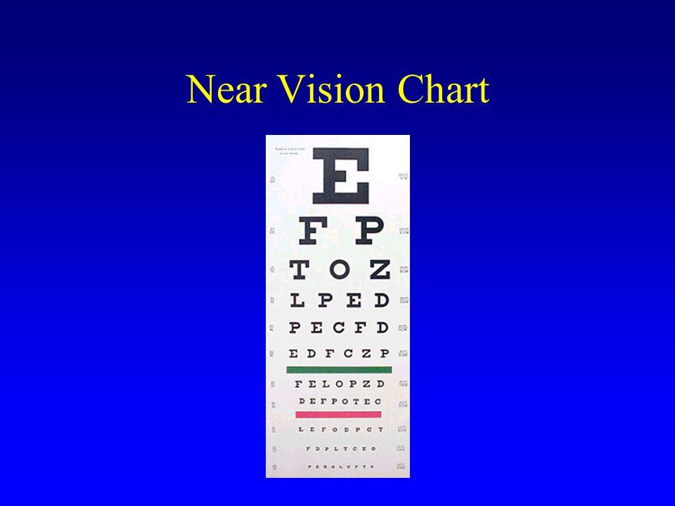 Near Vision Chart