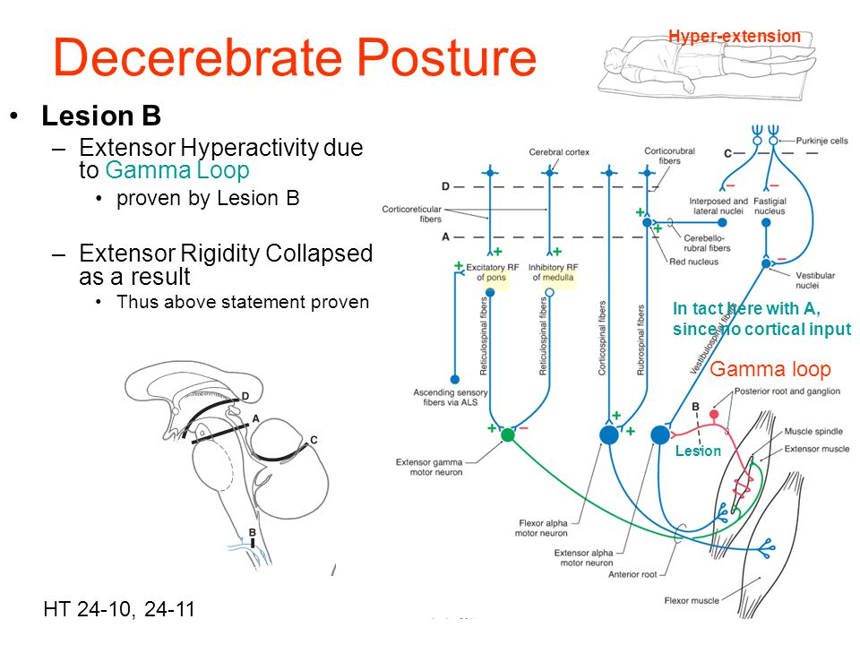 Decerebrate Posture Lesion B Extensor Hyperactivity due to Gamma Loop