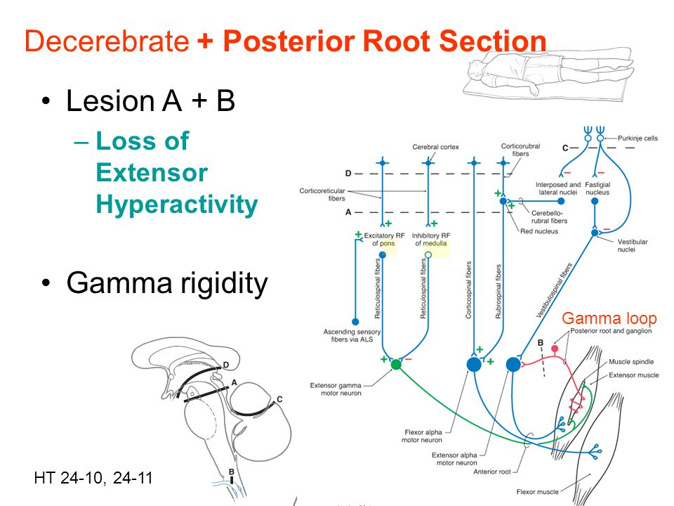 Decerebrate + Posterior Root Section
