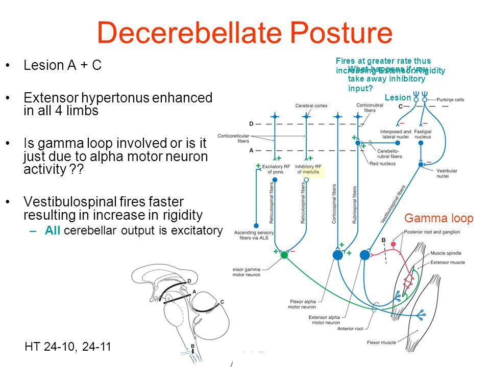 Decerebellate Posture