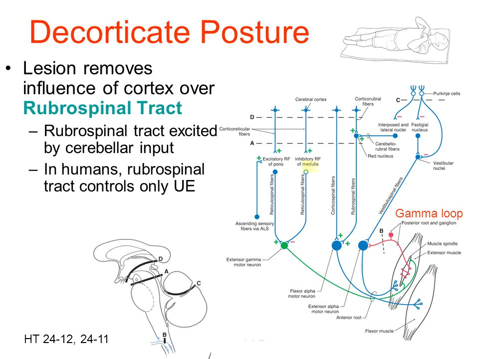 Decorticate Posture Lesion removes influence of cortex over Rubrospinal Tract. Rubrospinal tract excited by cerebellar input.